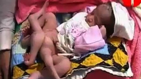 Ce bébé est né avec 6 jambes !