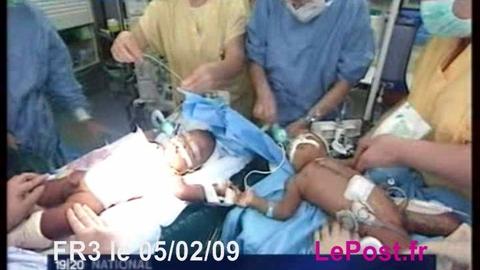 2 frères siamois séparés à l'hôpital Necker à Paris