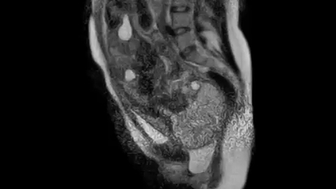 Voilà à quoi ressemble un accouchement vu de l'intérieur